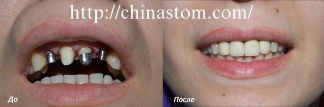Лечение зубов в Государственной больнице
