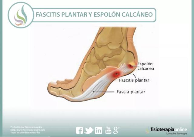 fascitis-plantar-tratamiento-dolor-pie-espolón-calcaneo