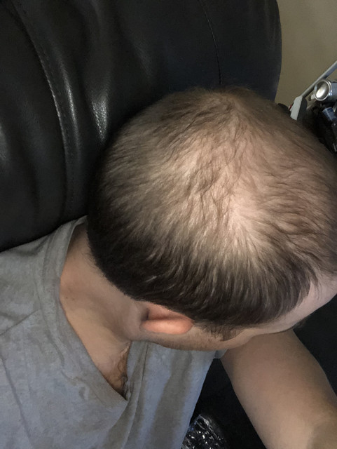 31 m how f cked am i real solutions toupee transplants etc