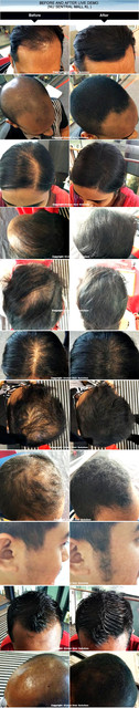 toppik before after 1