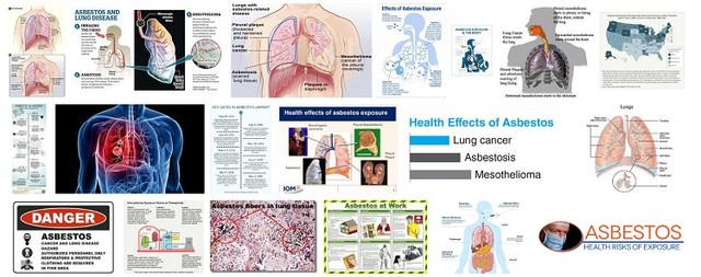 asbestos and health ottawa canada